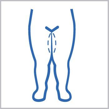 como es el lifting de piernas