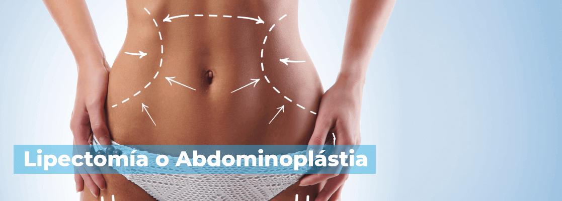 lipectomía abdominal o abdominoplastia