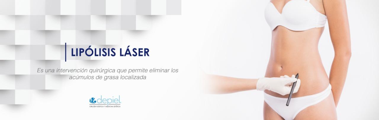 Lipolisis laser
