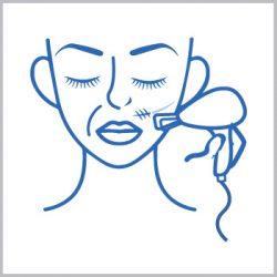 Rejuvenece tu piel y trata cicatrices con Laser Co2 Fraccionado