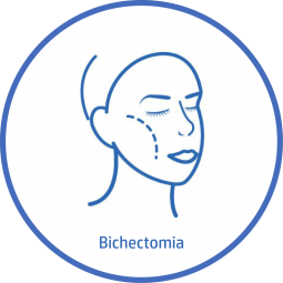 Cirugía plastica Facial bichectomia