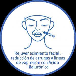 Tratamiento estetico Facial-arruas-lineas-de-expresion acido hialuronico