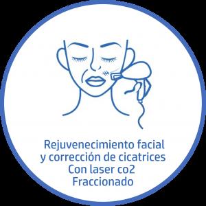 Tratamiento estetico Facial correcion de cicatrices