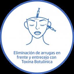 Tratamiento estetico Facial toxina botulinica