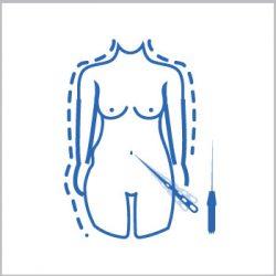Vibrolipoescultura tickle lipo