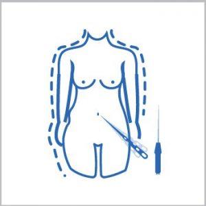 Vibrolipoescultura Tickle Lipo Abdomen. Cintura y Espalda  $4.500.000
