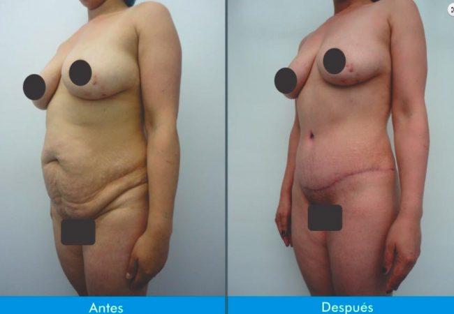 Lipectomia-o-Adbominiplastia-11.4
