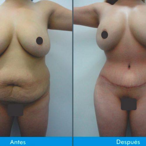 Lipectomia-o-Adbominiplastia-4.2