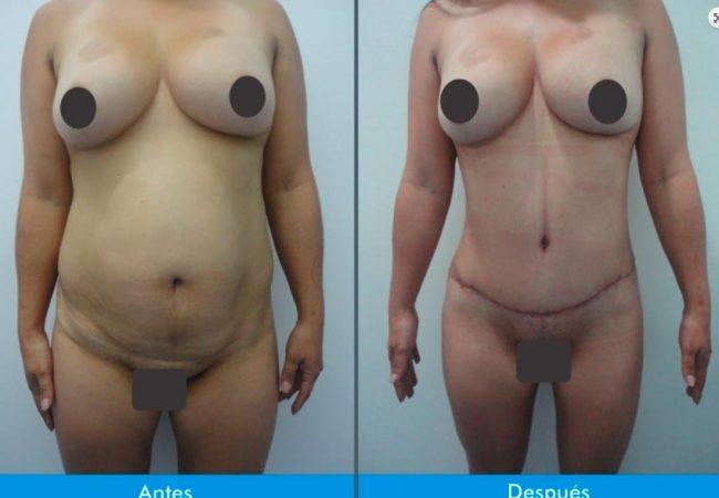 Lipectomia-o-Adbominiplastia-7.2