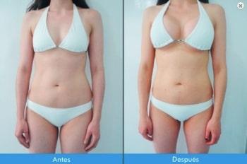 Mamoplastia-de-Aumento-2-4