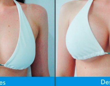 Mamoplastia-de-Aumento-2-6