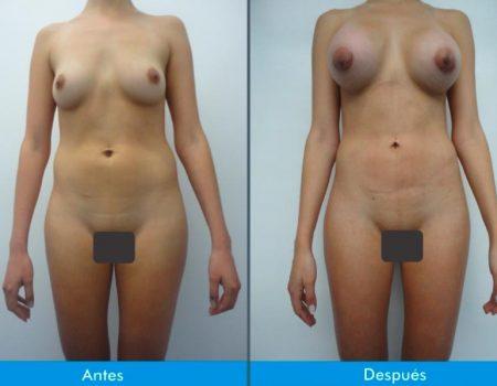 Mamoplastia-de-Aumento-3-3