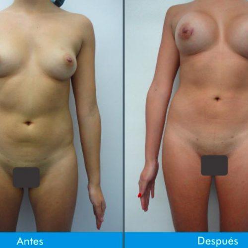 Mamoplastia-de-Aumento-4-2