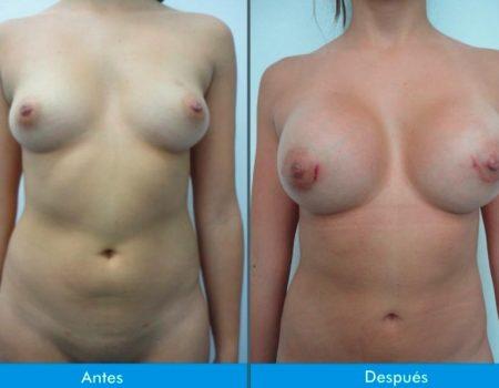 Mamoplastia-de-Aumento-4-3