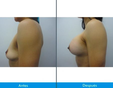 Mamoplastia-de-Aumento-6-2