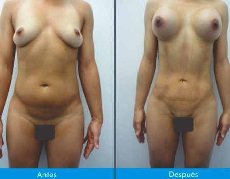 Mamoplastia-de-Aumento-6-4