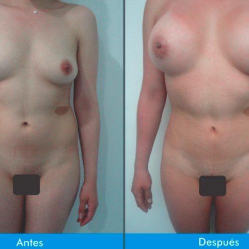 Mamoplastia-de-Aumento-7-1