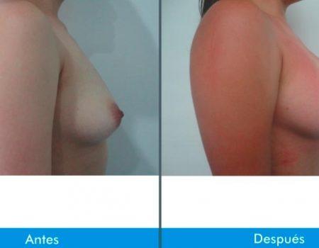 Mamoplastia-de-Aumento-7-8