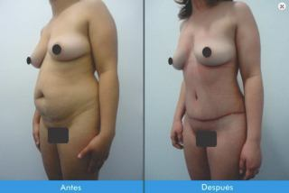 Lipectomía-o-Abdominoplastia-Colombia