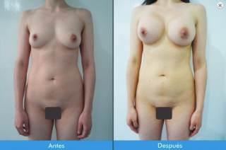 mamoplastia-de-aumento-grandioso