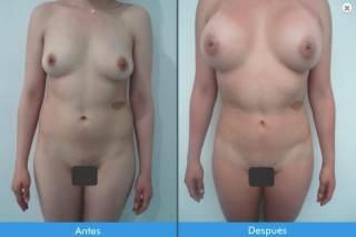 mamoplastia-de-aumento-fabuloso