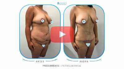 Resultados mamoplastia reduccion