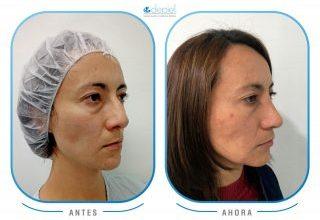 excelentes-resultados-rinoplastia-y-verruga-aida-1