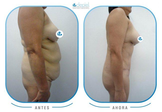 impactante-testimonio-cirugia-lipectomia-1