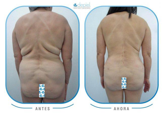 impactante-testimonio-cirugia-lipectomia-2