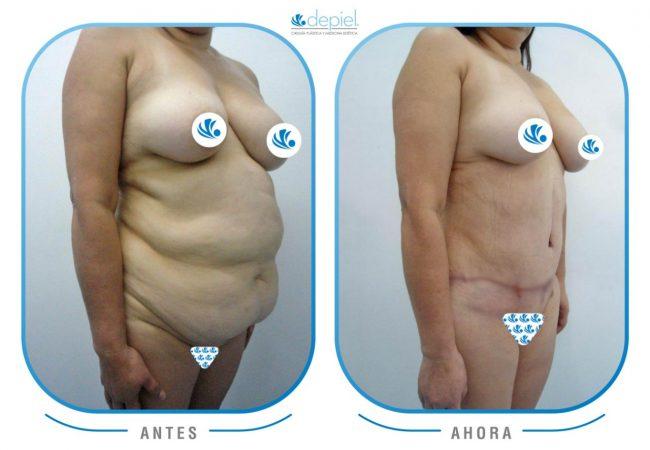 impactante-testimonio-cirugia-lipectomia