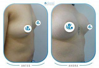 impactante-testimonio-cirugia-mamoplastia-de-aumento