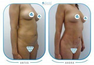 impactante-testimonio-cirugia-vibrolipoescultura-1
