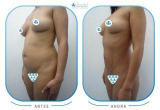 impactante-testimonio-cirugia-vibrolipoescultura-4