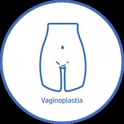 Cirugía plastica Corporal Vaginoplastia