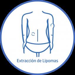 Cirugía plastica Corporal extraccion de lipomas
