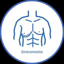 Cirugía plastica Corporal ginecomastia