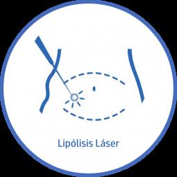 Cirugía plastica Corporal lipolisis laser