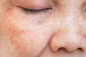 tratamiento manchas rostro